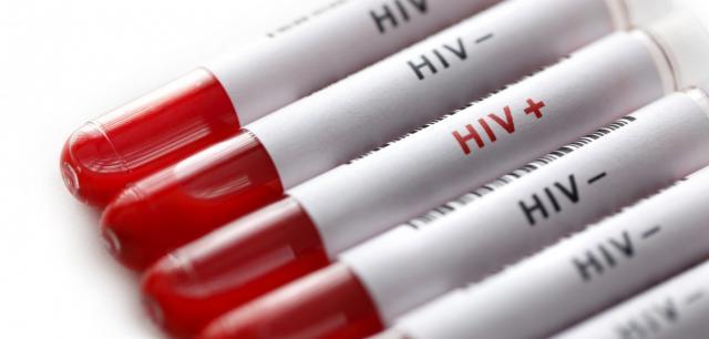 hiv, ilustracija