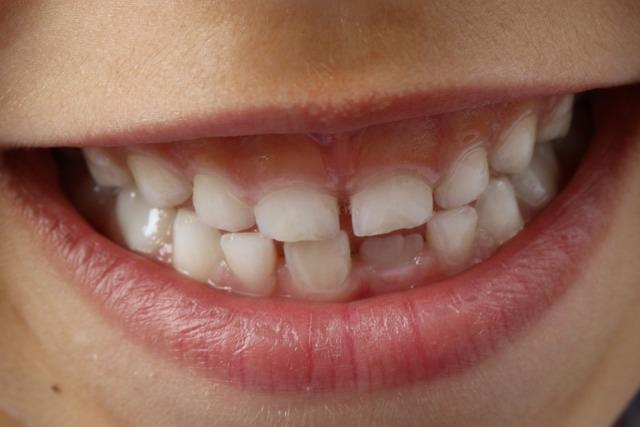 decji zubi